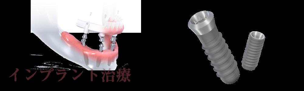 諏訪歯科 インプラント